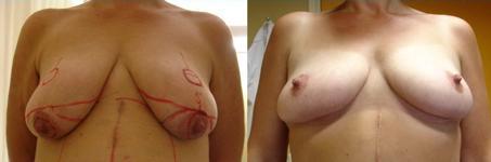 borstverkleining-techniek