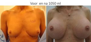 voor en na 1050 ml rond