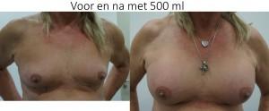 voor en na bij transgender
