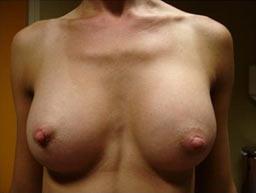 borstvergroting-implantaten-garantie-na-1b