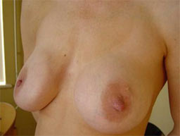 borstvergroting-implantaten-garantie-na-2b