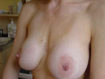 borstvergroting-implantaten-garantie-na-3b