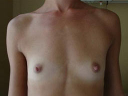 borstvergroting-implantaten-garantie-voor-1a