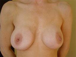 borstvergroting-implantaten-garantie-voor-2a