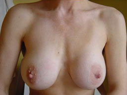 borstvergroting-implantaten-garantie-voor-3a