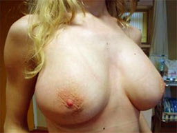 borstvergroting-ingreep-na-5b
