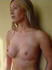 borstvergroting-resultaat-3-maanden-later-6c