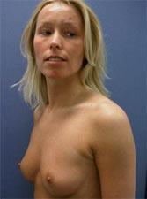 borstvergroting-resultaat-voor-de-operatie-6a