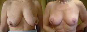 borstlift met anker litteken