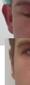 voor en na afstaande oren Rechts
