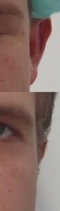 voor en na afstaande oren links